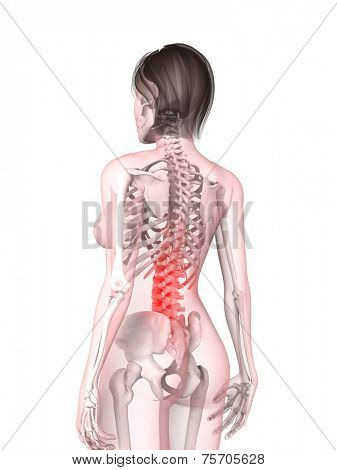 female backache illustration