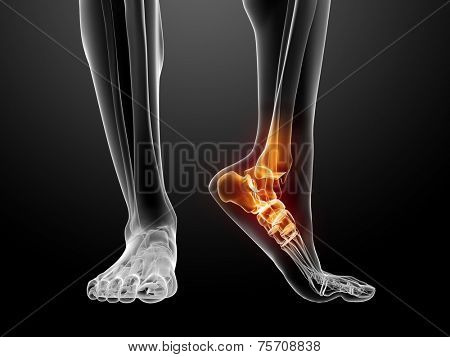 painful foot illustration