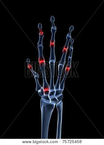 3d rendered illustration of an arthritic hand