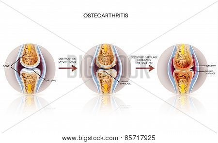 Osteoarthritis Detailed Illustration. From Healthy Joint To Damaged Joint