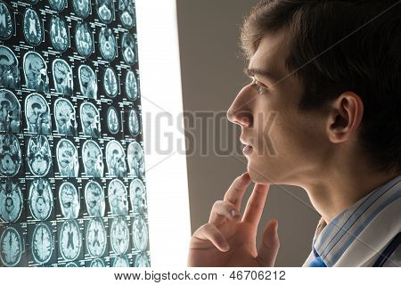 male doctor looking at the x-ray image