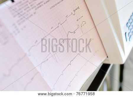 Printing Of Electrocardiogram.