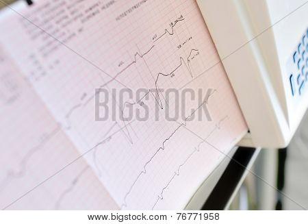 Printing Of Electrocardiogram.