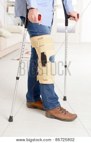Man with leg in knee cages and crutches for stabilization and support