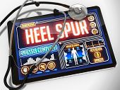 picture of spurs  - Heel Spur  - JPG