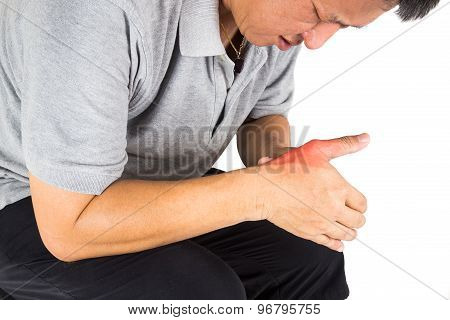 Man with painful and inflamed gout on his hand around the thumb area.