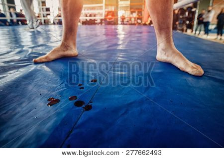 Fighter Mma With Blood After