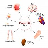 Diabetes Affects. Complications Of Diabetes Mellitus: Nephropathy, Diabetic Foot, Neuropathy, Retino poster