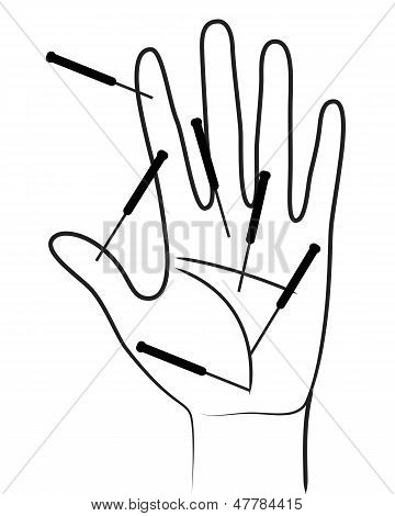 Acupunctured Hand On White Background