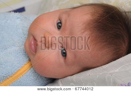 Newborn Baby With Allergic