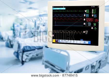 Electrocardiogram monitor in intensive care unit