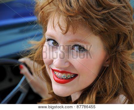 Colorful teeth braces.