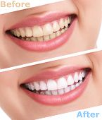 foto of dentures  - bleaching teeth treatment  - JPG