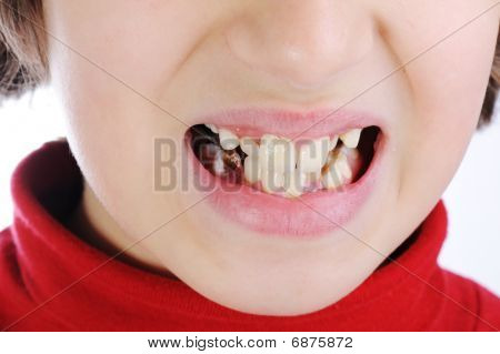 Bad Child Teeth