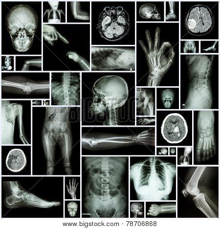 X -ray of human skeleton