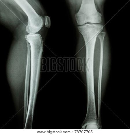 Film X-ray Leg & Knee Ap(anterior-posterior)/lateral