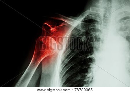 X-ray Anterior Shoulder Dislocation