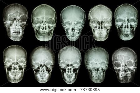 Collection Of Asian Skull (anterior View) (thai People)