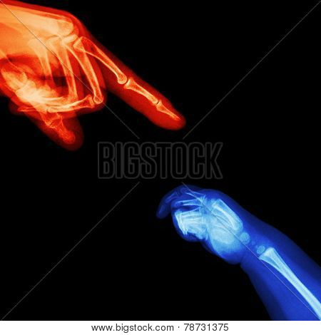 X-ray Adult's Hand Point Finger At Upper Side And Baby's Hand At Lower Side