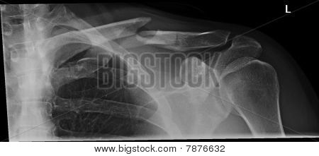 Broken shoulder xray