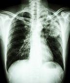 stock photo of tuberculosis  - film chest x - JPG