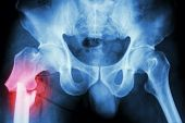 stock photo of pelvis  - film x - JPG