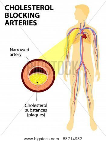 Cholesterol Blocking Artery