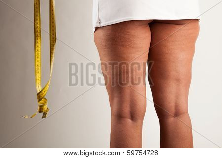 Young girl with cellulite