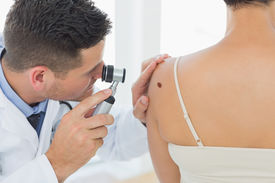 foto of mole  - Male doctor examining mole on back of woman in clinic - JPG