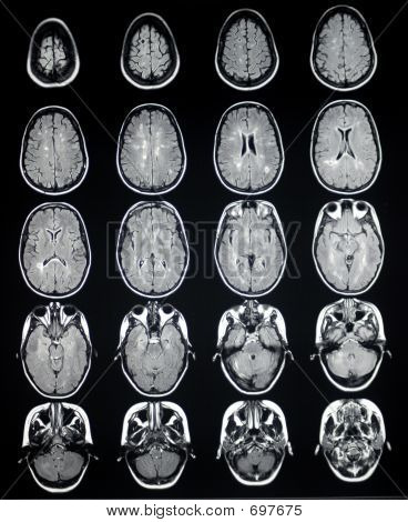 MRI Brain Axial MS