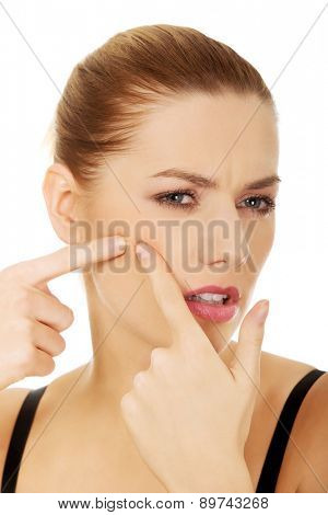 Unhappy young woman squeezing a pimple.