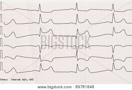 Ecg With Acute Period Of Macrofocal Myocardial Infarction