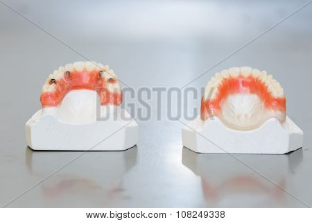 Upper and Lower False Teeth