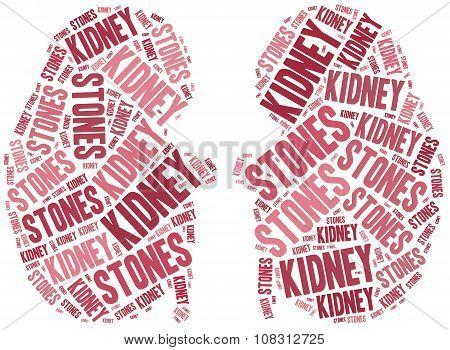 Kidney Stones.