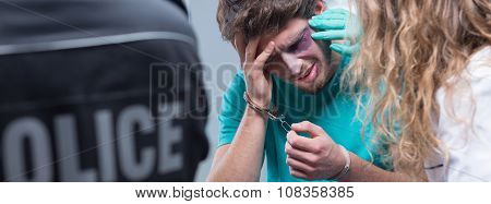 Handcuff Bruised Man