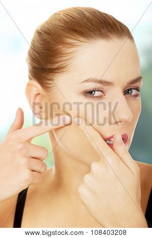 Young woman squeezes her pimple on cheek.