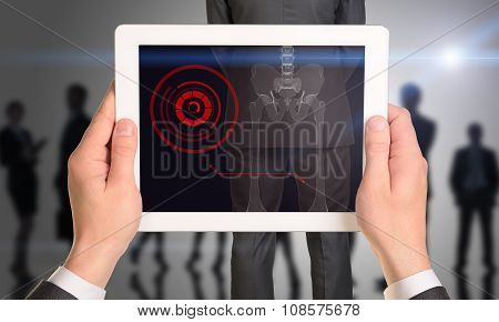 Businessman holding tablet with x-ray of mans back