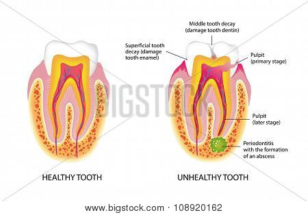 Healthy And Unhealthy Tooth