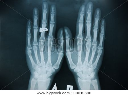 X-ray Hand (finger)