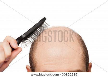 Glatze Mann Kopf