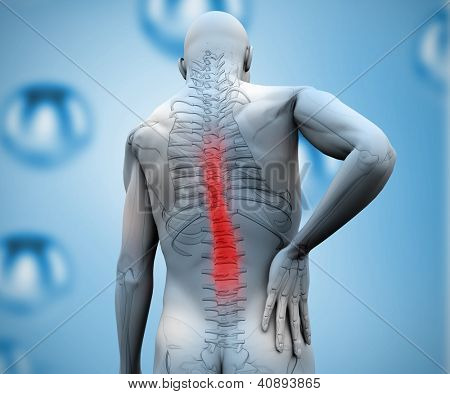 Digital figure showing skeleton with highlighted back pain