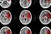 pic of hemorrhage  - Ischemic stroke  - JPG