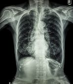 image of bronchus  - Chest X - JPG