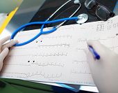 picture of diagnostic medical tool  - Medical diagnostic tools in the doctor