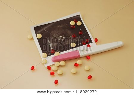 Medicine Pills, Vitamins And Ultrasound Film Of  Fetus With Positive Pregnancy Test On A Beige Backg