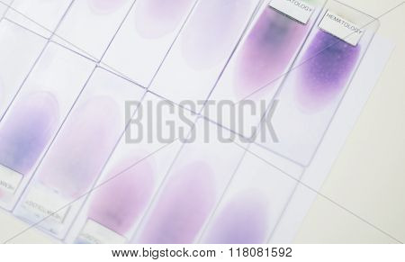 Blood Smear Test Or Blood Film. Two Slides And A Drop Of Blood And Petri Dishes In The Background
