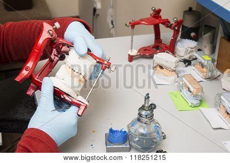 Dental Technician Showing Tooth Dentures