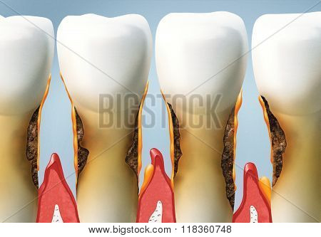 abnormal accumulation of plaque on the edges of the teeth and below the gumline