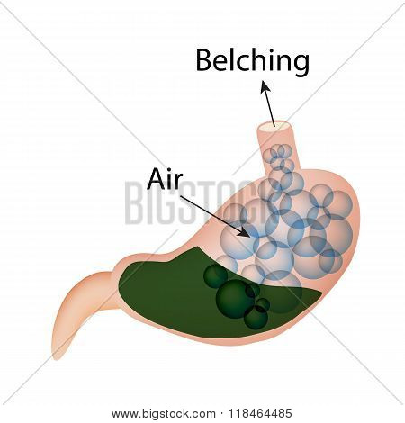 Belching. Air in the stomach. The structure of the esophagus and stomach. Infographics. Vector illus