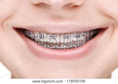 Broad smile girl with metal braces. Closeup
